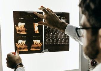 Stomatološka ordinacija, stomatolog Novi Beograd, lečenje zuba i ortodoncija