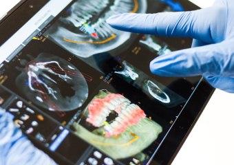 lečnje zuba i ugradnja implantata, Stomatološka ordinacija, stomatolog Novi Beograd