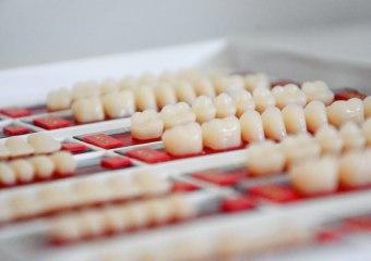 Zubne ljuspice, Somatološka ordinacija, stomatolog Novi Beograd